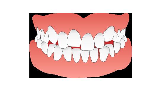 叢生(八重歯・乱ぐい歯)