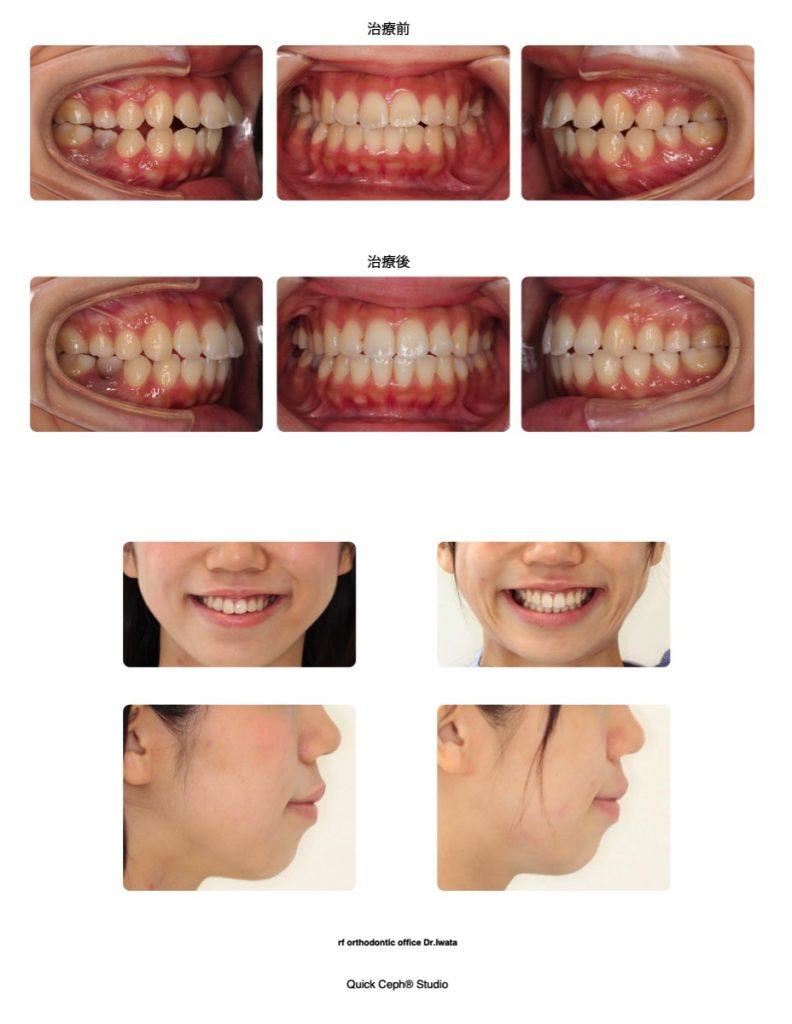 で 自分 前歯 矯正 歯並びは自分で治せる?セルフで行える歯並びを治す方法やリスクとは